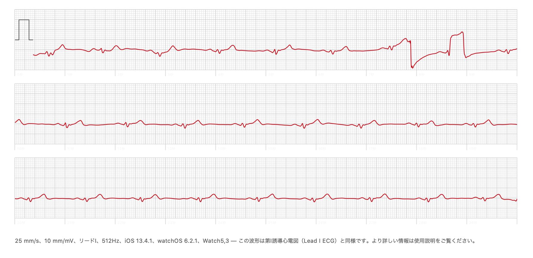 心電図PDF